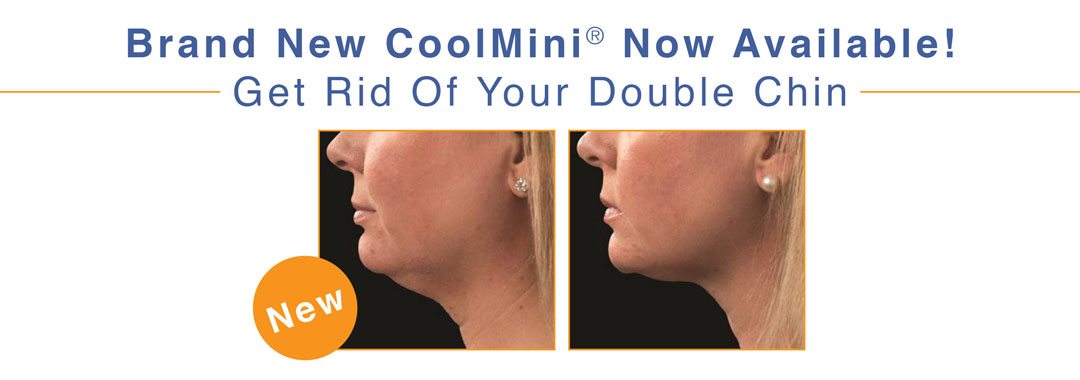CoolSculpting CoolMini | Double Chin, Neck Lift | Body by OrangeTwist